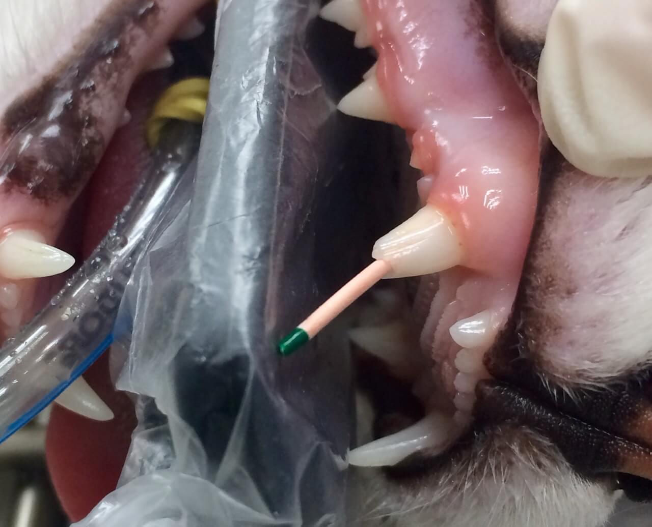 Extração Dentes de Leite